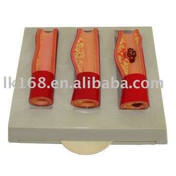 Plastic Injection Product - Ab125 Three Artery Model, Blood Vessel ...