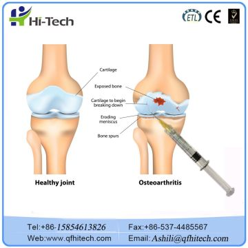 Injectable Sodium Hyaluronic Acid Injection For Knee Surgery