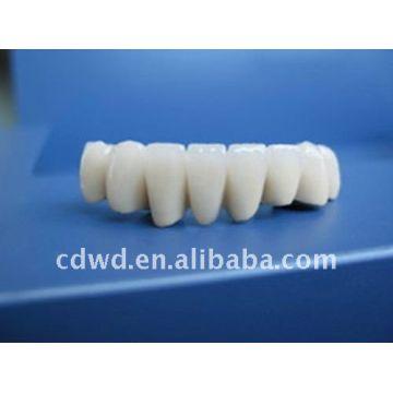 China Porcelain Bonded Metal Crown