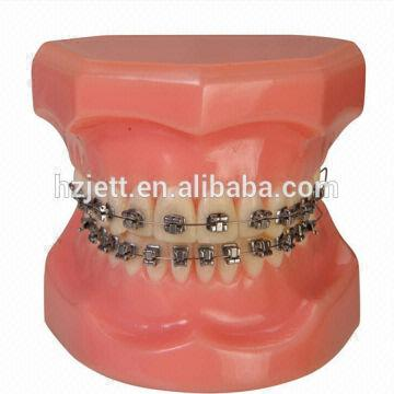 dental brackets mim mesh brackets orthodontic china dental brackets mim mesh brackets orthodontic
